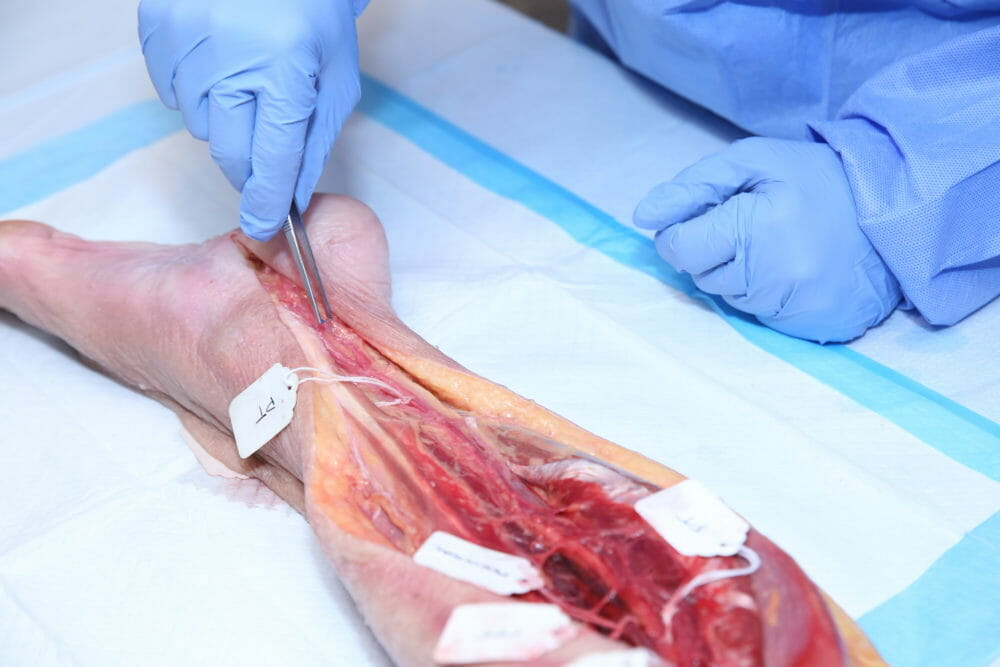 Healthcare and Medical Photography of cadaver internal presentation leg used by Attendees to Practice Hands-On Skills in Procedural Cadaver Lab